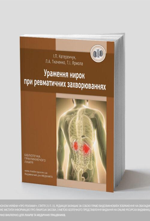 Ураження нирок при ревматичних захворюваннях